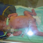 Premature baby in Africa